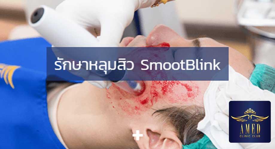 AMED Clinic-คลินิกเลเซอร์หลุมสิว